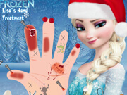 Elsa's Hand Treatment